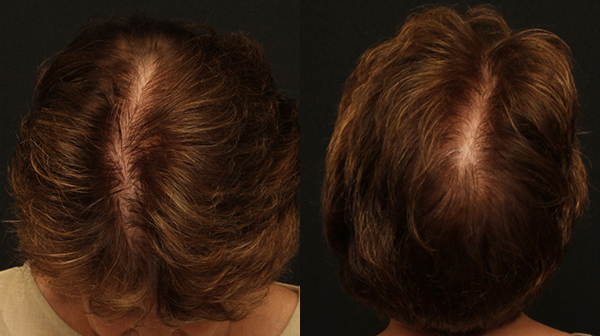 Female Hair Restoration Before and After with NeoGraft® Automated Hair Transplantation System