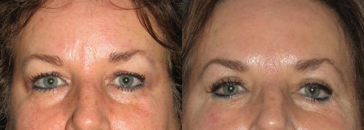 Patient is 62 years old.  Post operation photo at 6 weeks.  Upper lid blepharoplasty.