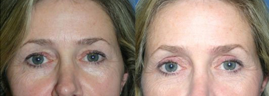 Patient is 46 years old.  Volume  400cc post operation photo at 6 weeks.  Patient had upper eyelid surgery Blepharoplasty.