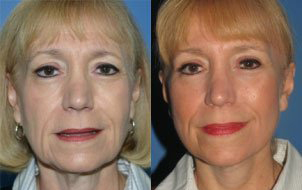 Facelift and BluePeel following massive weight loss due to gastric bypass surgery.