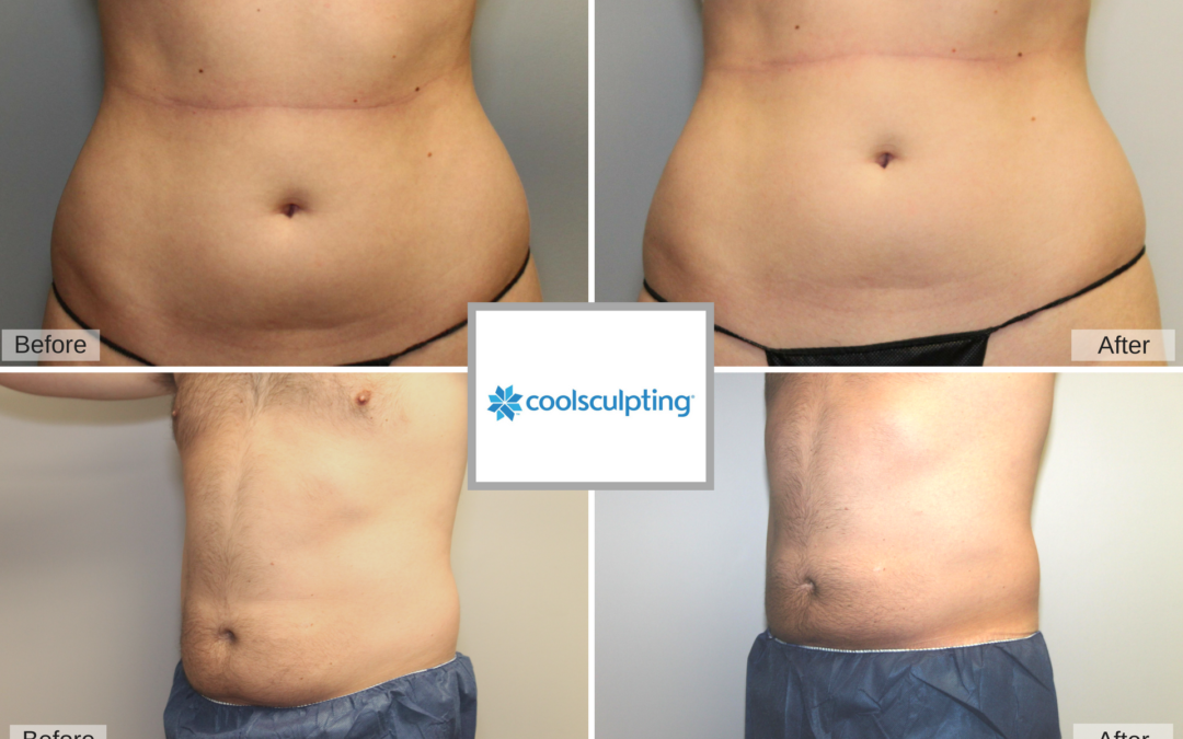 Freeze Fat Away with COOLSCULPTING® at Capizzi MD