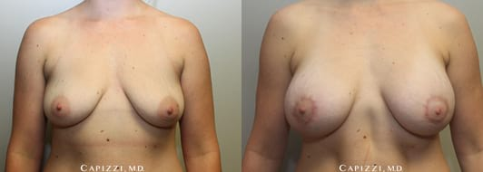 26 Year old, Sientra smooth round 355cc cohesive gel implants, 200cc fat grafting into upper breast