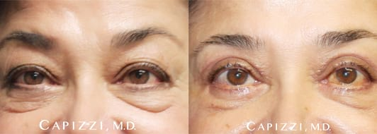 Eyelid reduction surgery at Capizzi MD