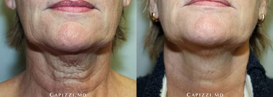 Microlaser peel, 30 microns on face, 20 microns on neck. Results 2 weeks post-treatment
