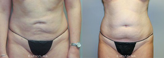 3 months post-op, liposuction to the outer hips, abdomen, banana roll