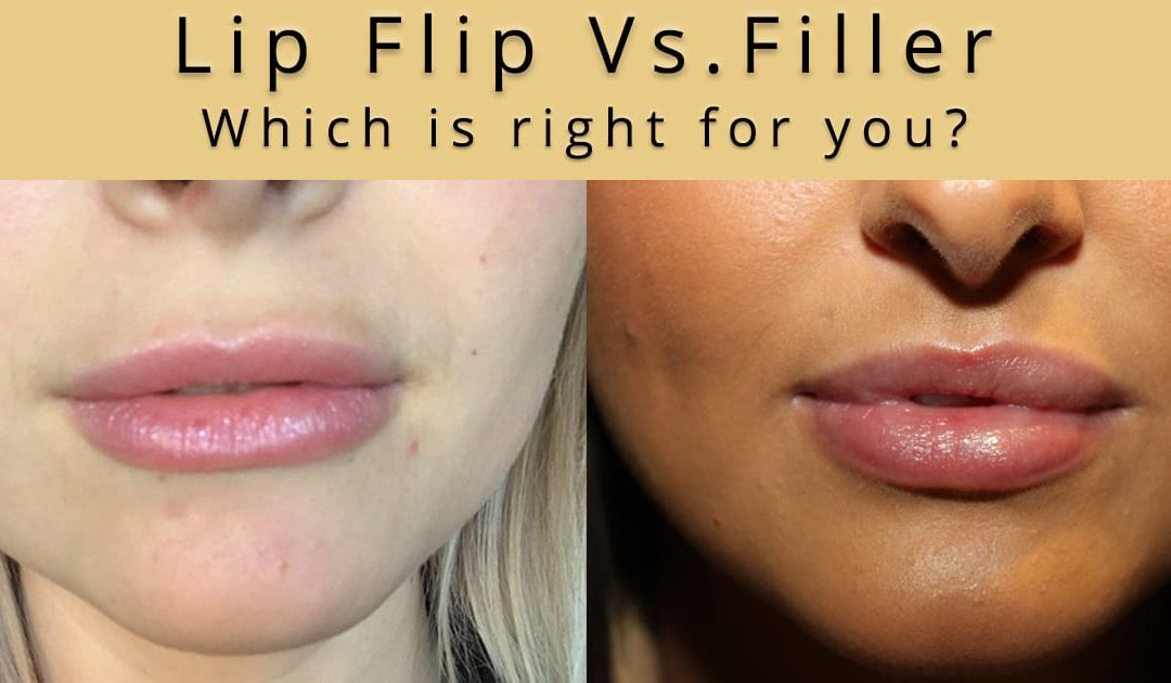 Comparing a Botox Lip Flip procedure to a lip filler treatment