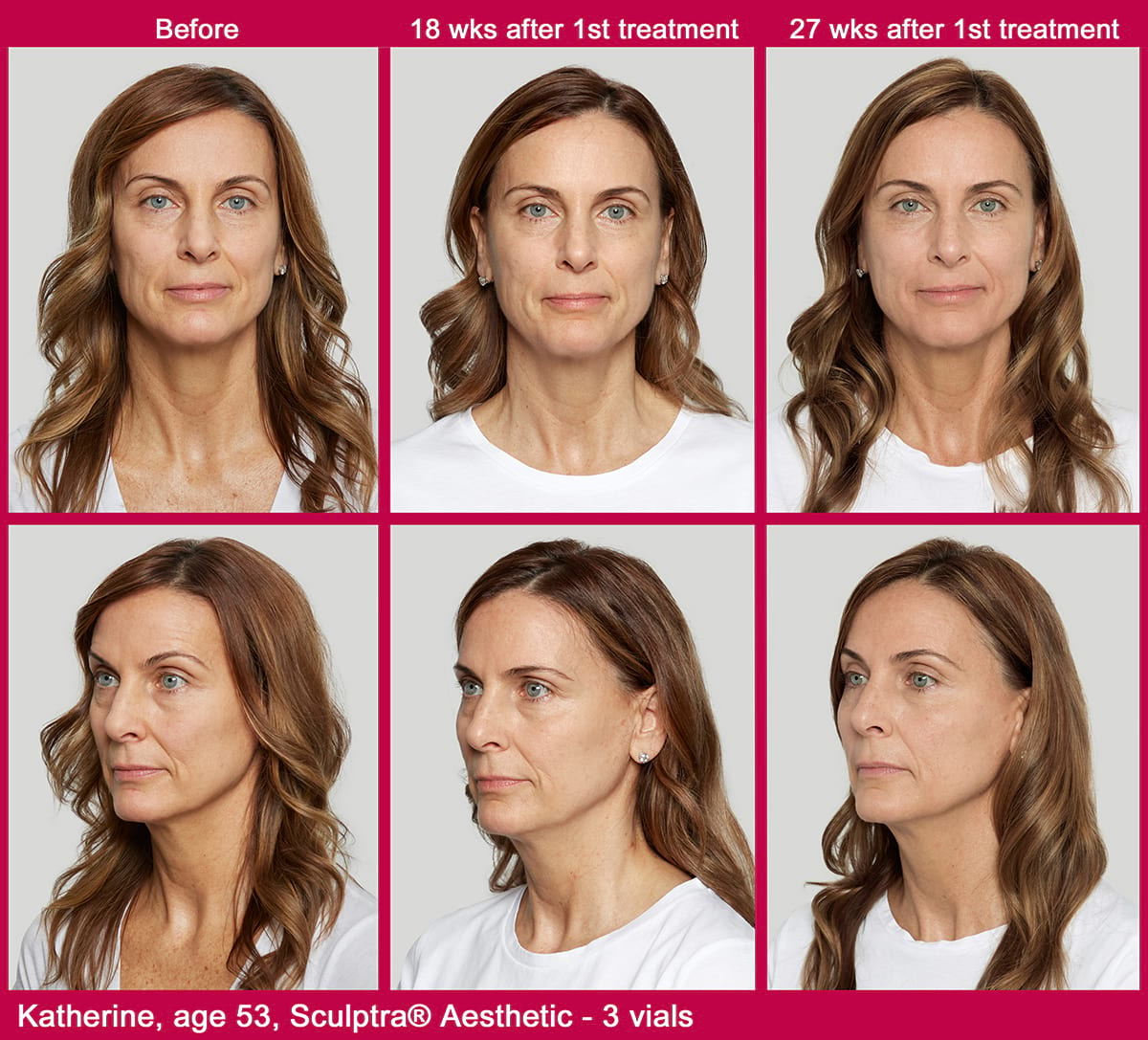 Before And After Sculptra Karen Age 53