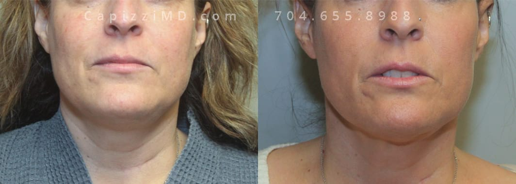 Post-procedure pics taken 4 months post-tx. Profound and 1 treatment of Kybella. Front view.