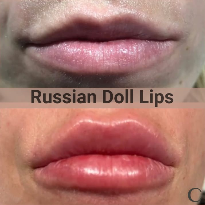 Russian Doll Lip Filler
